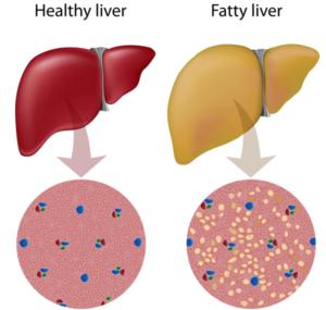 مقایسه کبد چرب و کبد سالم رژیم درمانی رژیم انلاین هایپر دایت